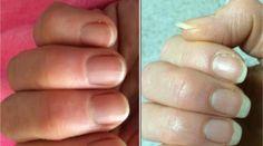 Vous aimeriez que vos ongles poussent plus rapidement ?Quand on a des ongles rongés ou trop courts, c'est vrai que ça donne envie !Avoir les ongles longs, c'est quand même plus bea