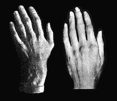 Chopin's and Beethoven's Hands side by side. Chopin on the left...Beethoven on the right./hand casts