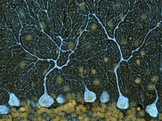 Purkinje cells, some of the largest neurons in the brain, from a mouse at 40-times magnification.