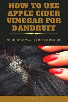 12 Ways to Get Rid of Dandruff With Apple Cider Vinegar Loading. 12 Ways to Get Rid of Dandruff With Apple Cider Vinegar Apple Cider Vinegar Dandruff, Vinegar Hair Rinse, Apple Cider Vinegar For Hair, Apple Coder Vinegar Hair, Home Remedies For Dandruff, Natural Remedies, Health Remedies, Cider Vinegar Weightloss, Vinegar