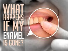 Without enamel, the sensitive part of your teeth is exposed and vulnerable to substances that can harm your teeth, much more susceptible to breakages, and can become extremely sensitive and painful.