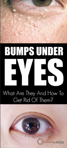 how to get rid of wrinkles around eyes home remedies