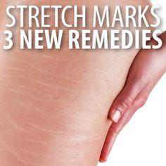 Dr Oz: Tretinoin Cream Vs Retinol & Stretch Marks Microdermabrasion