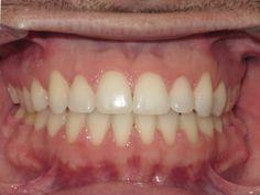 Orthodontic Treatment : Adult Orthodontic Treatment Results http://www.rankipedia.com/dentist/beforeafterajax