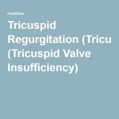 Tricuspid Regurgitation (Tricuspid Valve Insufficiency)