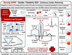 ECG and Telemetry are continuous monitoring for cardiac abnormalities. Generally if someone is on telemetry the nurse must be monitoring for ECG changes and monitoring in lead 2 Here is a Quick ove… Cardiac Nursing, Nursing Mnemonics, Advanced Nursing, Nursing Information, Critical Care Nursing, Nursing School Notes, Respiratory Therapy, Medicine Book, Nursing Tips