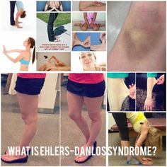 """WHAT IS EHLERS-DANLOS SYNDROME? Once you have received an EDS diagnosis or even if you think you may have EDS, many people will ask """"What is Ehlers-Danlos syndrome?"""" Having knowledge o…"""