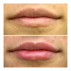 This client asked for a subtle & natural lip augmentation. Pictures taken immediately before & after.  #lipfiller #poutylips #antiaging #juvederm #Cosmeticenhancement #infographic #dermalfillers #neurotoxins #Botox #dysport #botoxfiller #brotox #medspa #skincare #goodbyewrinkles # beforeafter #wrinkles #samsara_Sterling