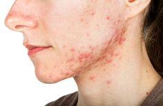 2 mascarillas naturales para combatir el acné