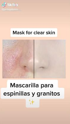 Face Skin Care, Diy Skin Care, Skin Care Tips, Beauty Tips For Glowing Skin, Clear Skin Tips, Beauty Skin, Haut Routine, Brown Spots On Skin, Facial Tips