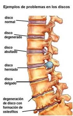 degenerative disc disease can lead to herniated disc or spinal stenosis Spinal Decompression, Degenerative Disc Disease, Spine Surgery, Spine Health, Sciatica Pain, Scoliosis, Chiropractic Care, Chiropractic Assistant, Cervical Cancer