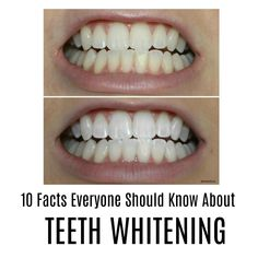 48 Best Science Of Teeth Whitening Images On Pinterest Dental Caps