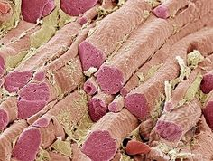 Skeletal muscle fibres - Science Photo Library