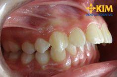 Răng hô có xấu không - Làm sao khắc phục răng hô xấu hiệu quả?