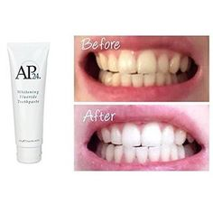 Toothpaste Nuskin Authentic Whitening Fluoride Nu-skin for sale online Ap 24, Whitening Fluoride Toothpaste, Face Hair Removal, Hair Removal Machine, Natural Teeth Whitening, Unwanted Hair, Shower Gel, At Least, Skin Care