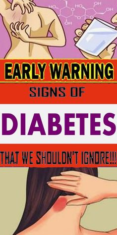 Early Warning Signs of Diabetes That We Shouldn't Ignore - Healthy House Natural Health Tips, Natural Health Remedies, Health And Beauty Tips, Herbal Remedies, Health Facts, Health Diet, Health And Nutrition, Health And Wellness, Wellness