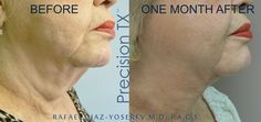 #PrecisionTx - Precision Laser Treatment gives you a defined look without surgical face-lift! - One-Time - One Hour - Stimulate collagen production - Improve skin elasticity, thickness and texture. Want to learn more about PrecisionTx?  Visit us 3211 Ponce de Leon Blvd, Suite 210. Coral Gables, Fl 33134.