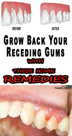If you are experiencing receding gums then you have found a great article to read. In this article you will find 9 of the best home natural remedies to help grow back your receding gums. Your gums are not something you should ignore, especially if you are Gum Health, Dental Health, Oral Health, Health And Wellness, Teeth Health, Wellness Tips, Natural Cures, Natural Health, Natural Facial
