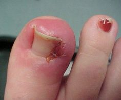26 Best Ingrown toenail images in 2014 | Ingrown toe nail, Toenails ...