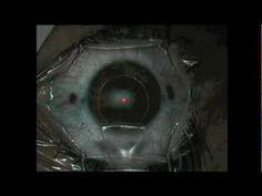 Crazy LASIK Eye surgery!