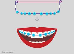 Diy guide on how to make fake braces that look real fake braces craft wire fake braces step 4 solutioingenieria Choice Image