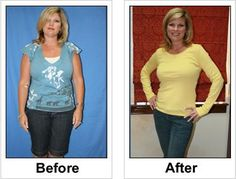 Full Gallery at : Weight Loss Before/After Set 11   http://www.revitol.com/product/overview/Revitol_Cellulite_Solution/