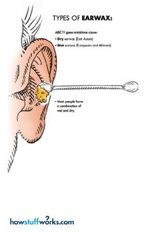Earwax can come in many different forms, depending on your genes - is your earwax dry or wet?