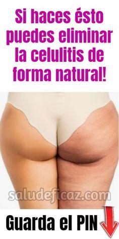 ¡Con estos ejercicios es posible eliminar la celulitis de forma natural! #celulitis #eliminarcelulitis #mujer #belleza #piel #remedioscaseros Loose Weight, Ways To Lose Weight, Cellulite Exercises, Body Training, Keep Fit, Skin Care Regimen, Excercise, Body Care, Workout Videos