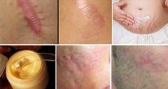 ÉLIMINEZ LES CICATRICES DE TOUTE PARTIE DE VOTRE CORPS EN MOINS D'UN MOIS...Les cicatrices se produisent généralement après une blessure ou une opération chirurgicale qui endommagent la peau de façon permanente...