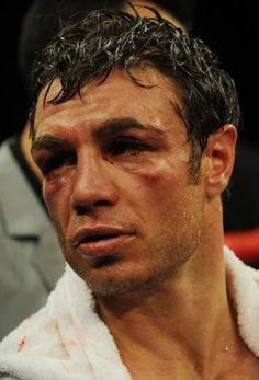 Australiano Michael Katsidis apanhou bastante de Márquez e foi para o hospital após sua derrota