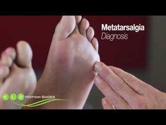 Ball of Foot Pain (Metatarsalgia, Morton's Neuroma, Morton's Toe, Sesamoiditis) - YouTube