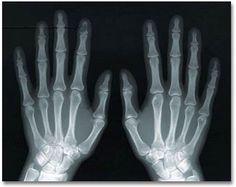 La radiografia de Los manos