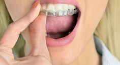 Affordable Dentist Near Me Provides you One of the best Denture Treatment in Texas and specially in Fort Worth.