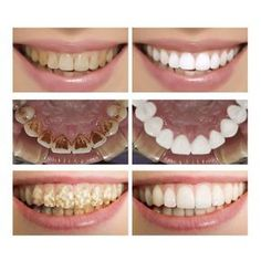 LANBENA Teeth Whitening Essence Powder Oral Hygiene Cleaning Serum Removes Plaque Stains Tooth Bleaching Dental Tools Toothpaste NoticeUsing on Teeth Whitening Procedure, Teeth Whitening System, Natural Teeth Whitening, Whitening Kit, Beauty Hacks That Actually Work, Serum, Beauty Hacks For Teens, Stained Teeth, Teeth Bleaching