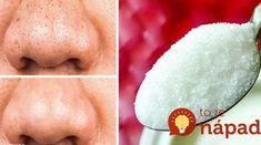 Kozmetička poradila, ako používať obyčajný cukor spôsobom, o akom sa nám nesnívalo: Tvár skrásnie aj v 60-tke! Aloe Vera