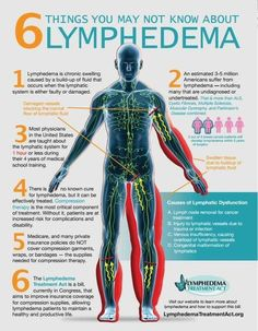 6 things need to know about lymphedema.
