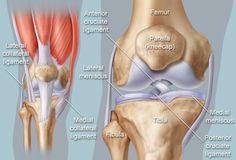 Anatomical illustration of knee; article includes knee conditions such as osteoarthritis, fluid buildup (effusion), meniscal tear, ACL, MCL, PCL, patella tendonitis, bursitis, rheumatoid arthritis, gout.