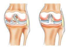 Как лечить болезни коленного сустава?