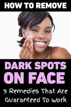 16 Tips to Get Rid of Sunspots With Natural Remedies Black Spots On Face, Brown Spots On Hands, Dark Spots, Brown Skin, Dark Skin, Dark Brown, Veronica, Spots On Forehead, Age Spot Removal