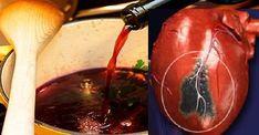 Tajný starý recept mníšky Hildegardy! Tento liek vylieči akékoľvek ochorenie srdca. | Báječné Ženy