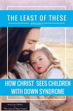 the least of these down syndrome