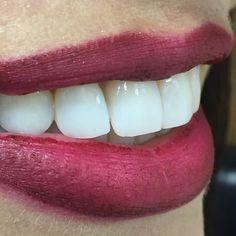 Un diseño de sonrisa responsable e increíble. No importa el antes o como llegues a las clínicas. Una hermosa sonrisa te cambiará tu vida si la haces completa y correctamente. Esta es en #emax #veneers by #drgsmile magia y placer al ver sonreír así a mis pacientes ! #missmundo #missuniverso #models#dentist #dentistrymyworld #dentisttothestars #celebritydentist#smiledesign #smilestudiomiami #smilestudiowellnesscenter by drgsmile Our Dental Veneers Page…