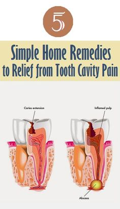 5 Simple Home Remedies to Relief from Tooth Cavity Pain..