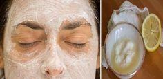 Aplique esta máscara de limão e bicarbonato no seu rosto e tenha uma pele limpa e livre de manchas | Cura pela Natureza