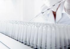 Teste único vai detectar zika, dengue e chikungunya