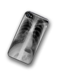 iPhone Case XRay Hard Case / Fits Iphone 4, 4S Medical Chest X-Ray. $18.00, via Etsy.