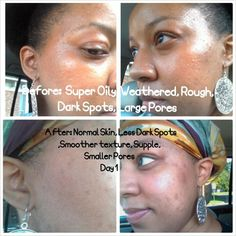 Lactic Acid, Skin care, beauty, acne, oily, sensitive, skin, facial, scarring, african american