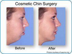 facial reconstructive surgeons in oklahoma