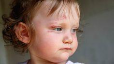 Çocuklarda Kafa Yaralanmalarında Belirti ve Bulgular Hafif kafa yaralanması: Kafada şişkinlik ya da kesik, kısa süreli kusma, bilincin kısa süreli kaybolması ve şaşkınlık ya da çift görme ve zaman zaman bir ile iki saat süren uykulu olma hali. Ciddi kafa yaralanması: Kafada şişkinlik ya da kesik, sürekli kusma, bilincin uzun süreli kaybolması, hafıza kaybı, sersemlik …