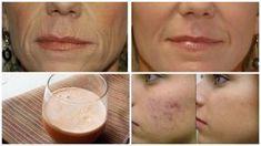 Cel mai ieftin aliment face minuni pentru piele. Elimină ridurile, vindecă acneea și previne îmbătrânirea prematură Glass Of Milk, Natural Remedies, Medicine, Peach, Fruit, Mai, Drinks, Beauty, Food